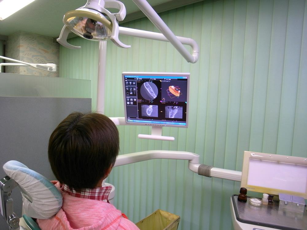 3Dでの画像診断